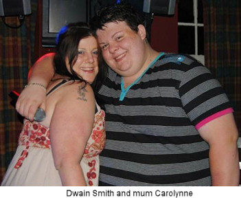 Dwain Smith gastric bypass story