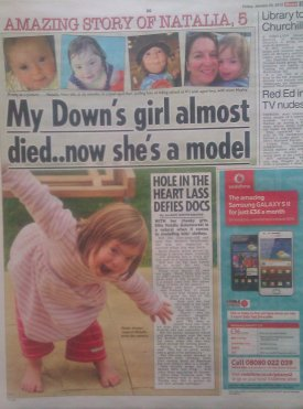 Sell my Story | Down's Syndrome