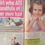 Girl who ate her own hair Millie Wallis