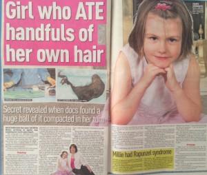Girl who ate her own hair Millie Wallis