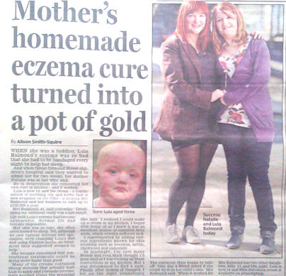 homemade eczema cure story image