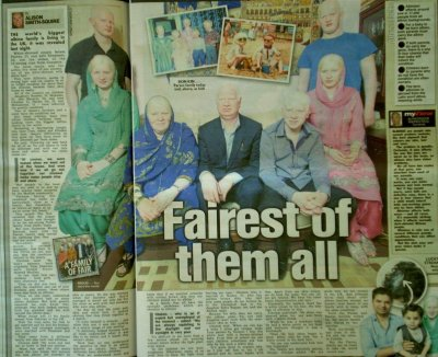 The World's biggest albino family live in Coventry...