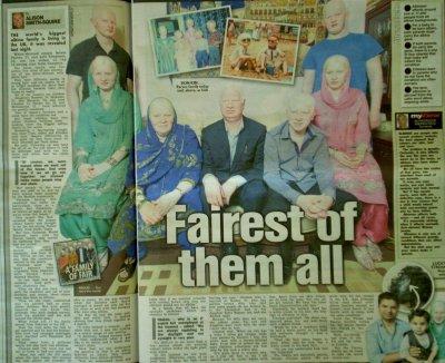 Ghulam Ali's Albino family story