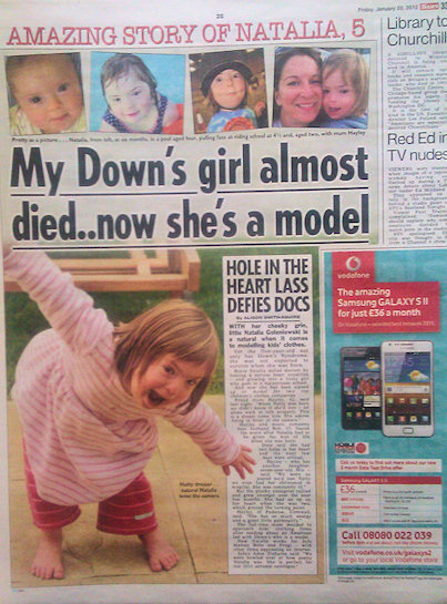 Downs Syndrome Model