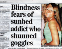 Addiction to sunbeds could blind me