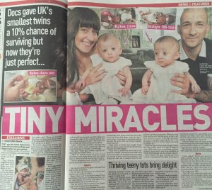 Smallest twins story
